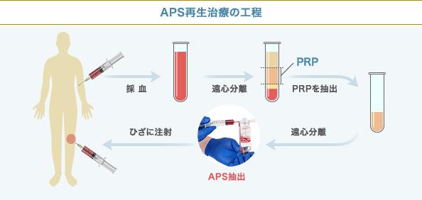APS療法の工程