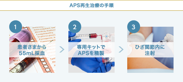 APS療法の膝治療の手順