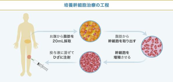 培養幹細胞治療の工程