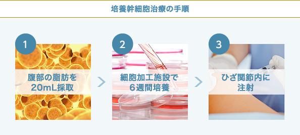 培養幹細胞治療のフロー