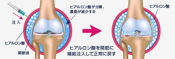 ヒアルロン酸を関節に補給注入して正常に戻す ヒアルロン酸が不足した関節液に補給注入