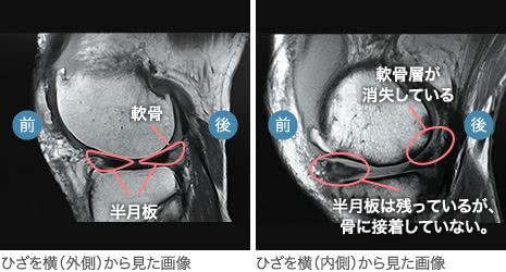 60代前半・男性/変形性膝関節症(中期)