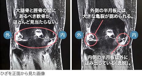 50代後半・女性/変形性膝関節症(末期)