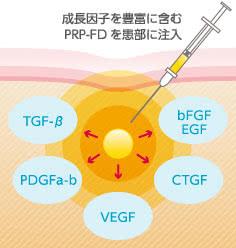 PRP-FD注射に含まれる成長因子の種類
