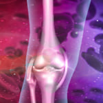 APS治療を表現した血液と膝関節