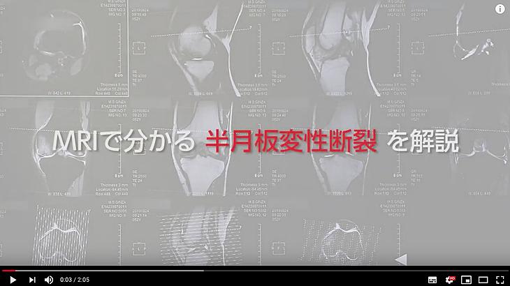 膝のMRI画像の解説動画サムネイル