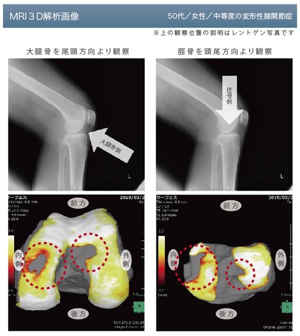 変形性膝関節症の膝MRI3D解析