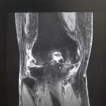 膝MRI画像(50代/変形性膝関節症)