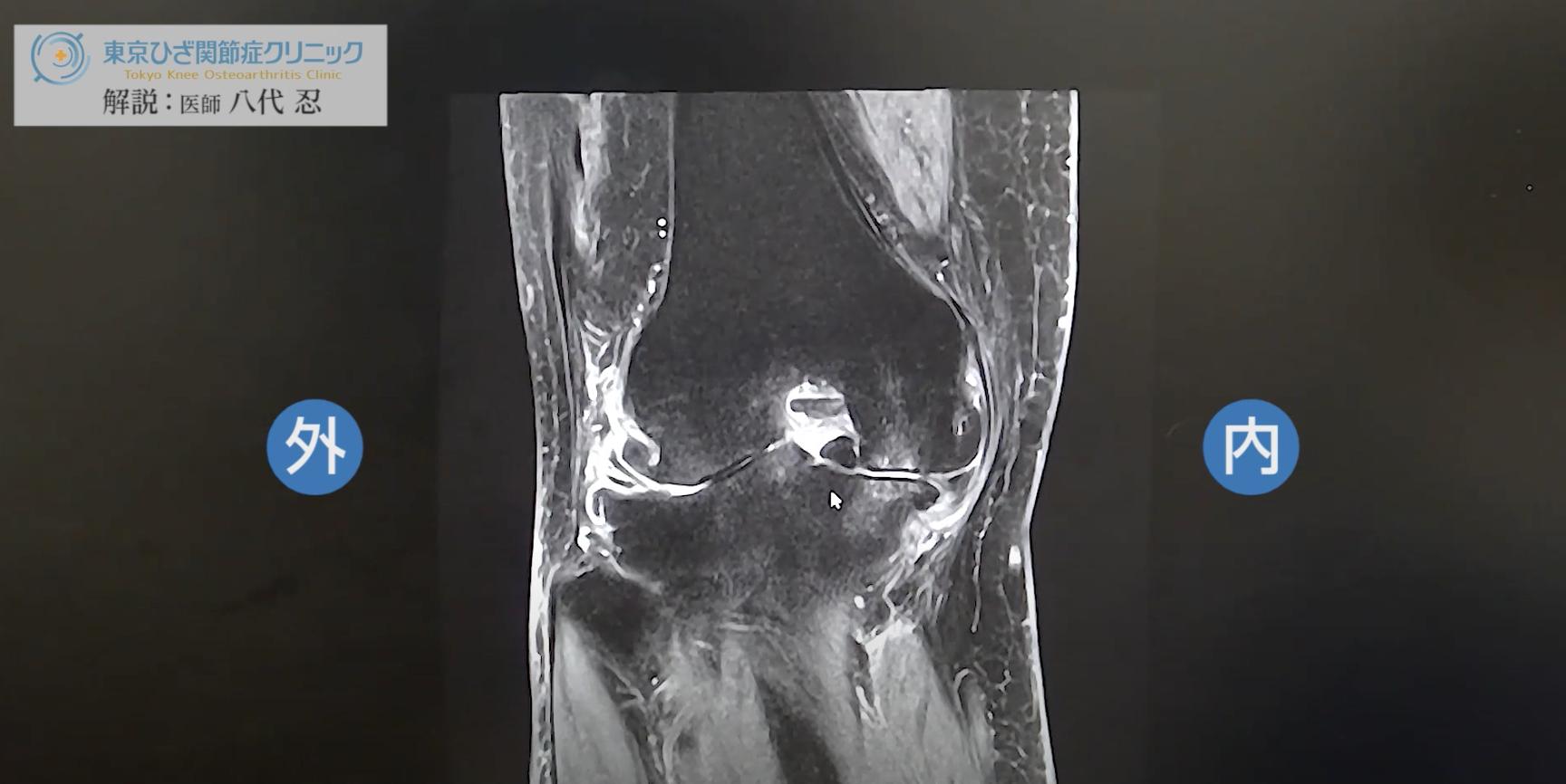 医師のMRI解説動画が好評です